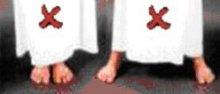 Onjuiste posities van de voeten tijdens het staan.